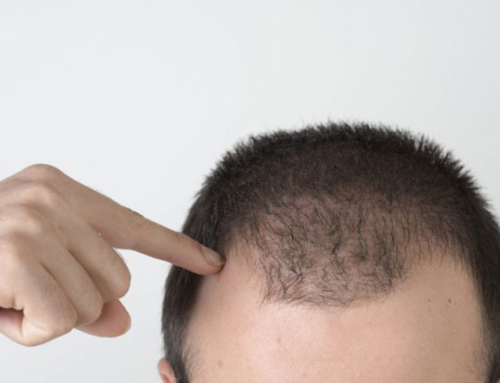 Εμφύτευση Μαλλιών U – FUE